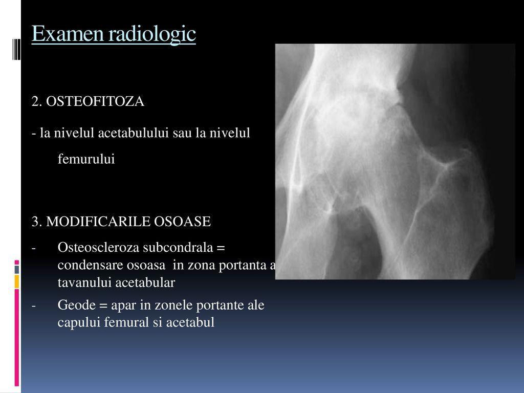 boala articulațiilor mari de ce o doare articulația de pe vârf