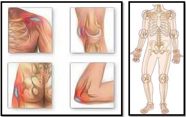 Рубрика: Ganglionii dureri de spate
