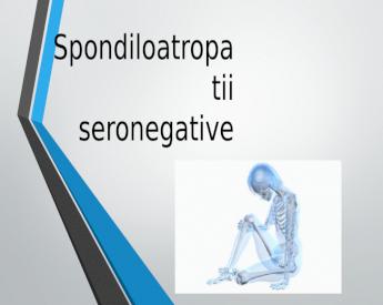 """Medic reumatolog: """"Artroza atacă articulațiile celor peste 50 de ani"""" - Bio Ortoclinic"""