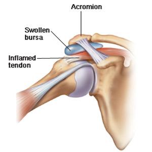 bursita cronică a tratamentului articulațiilor umărului