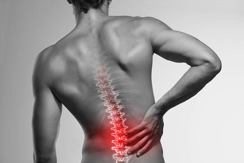 Durere de spate: tipuri, cauze si tratamente | Catena