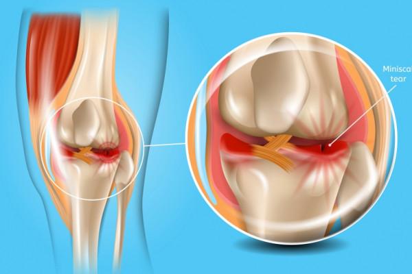 ruperea meniscului a simptomelor articulației genunchiului tratament articular cu chelyab