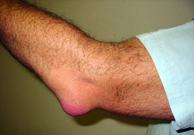 Bursita cotului provoacă simptome și tratament