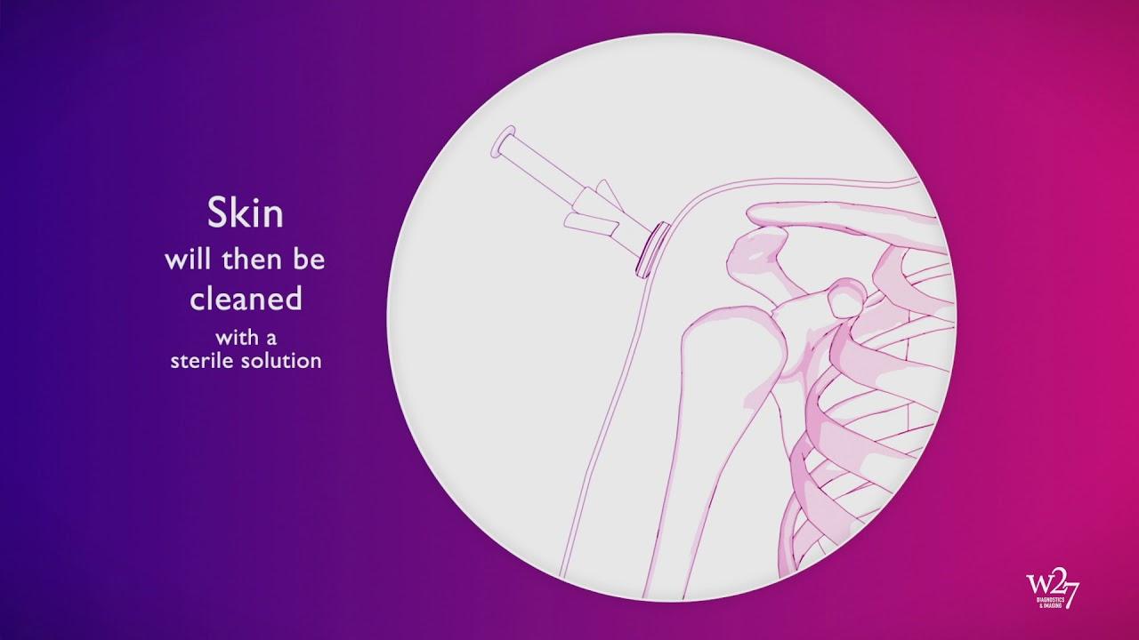 decompensarea artrozei articulației șoldului