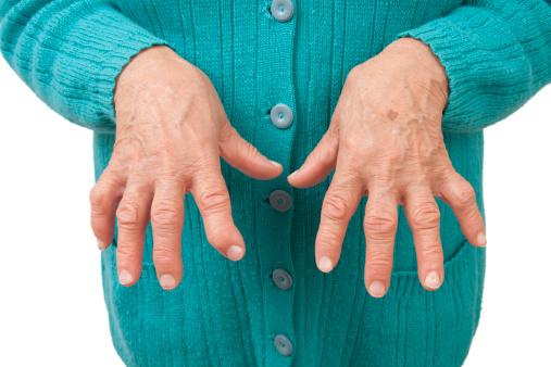 articulațiile mâinilor doare dimineața