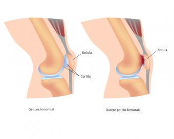 dureri de genunchi cu edem