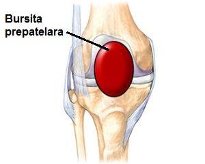 Bursita infrapatelară a tratamentului articulației genunchiului