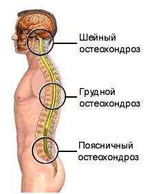 osteochondroza preparatelor coloanei toracice refacerea articulației umărului după o luxație obișnuită