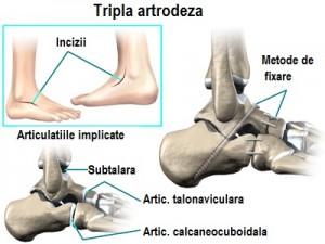 tratamentul artrozei cu picioarele plate