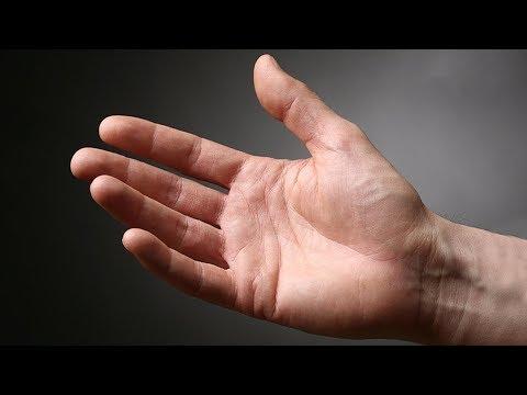 Ce să faci cu inflamația articulației pe deget