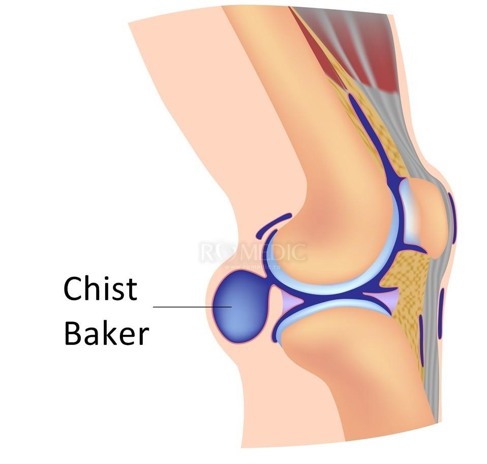 Articulat șoarece articulație genunchi: tratament, îndepărtare