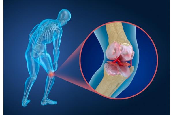 artroza precoce a genunchiului