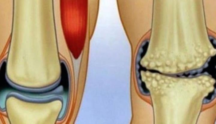 Remedii naturale pentru durerile articulare