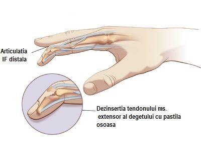 deformarea tratamentului de diagnosticare în artroza clinică