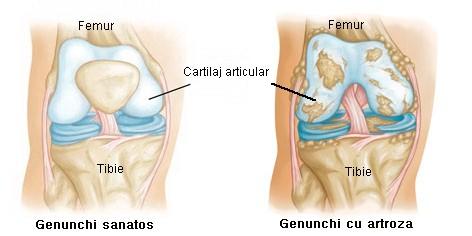 artroza genunchiului tratament eficient cu medicamente