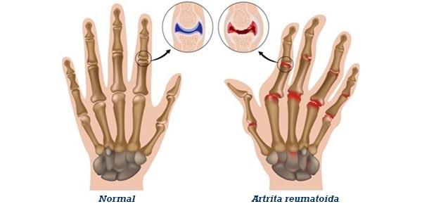 reumatita durerii articulare