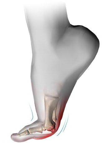 Unguent pentru durere în articulația umărului Unguent pentru durere în articulațiile brațului