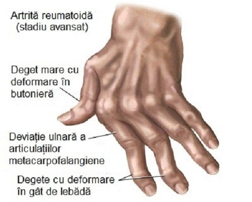 artrita mâinii drepte Cum să tratezi