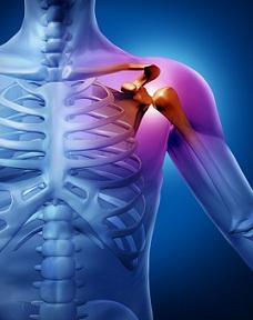 dona recenzii pentru artroza genunchiului