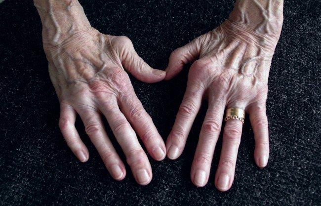 tratamentul articulației dureroase a piciorului inflamația articulară poate exista umflare