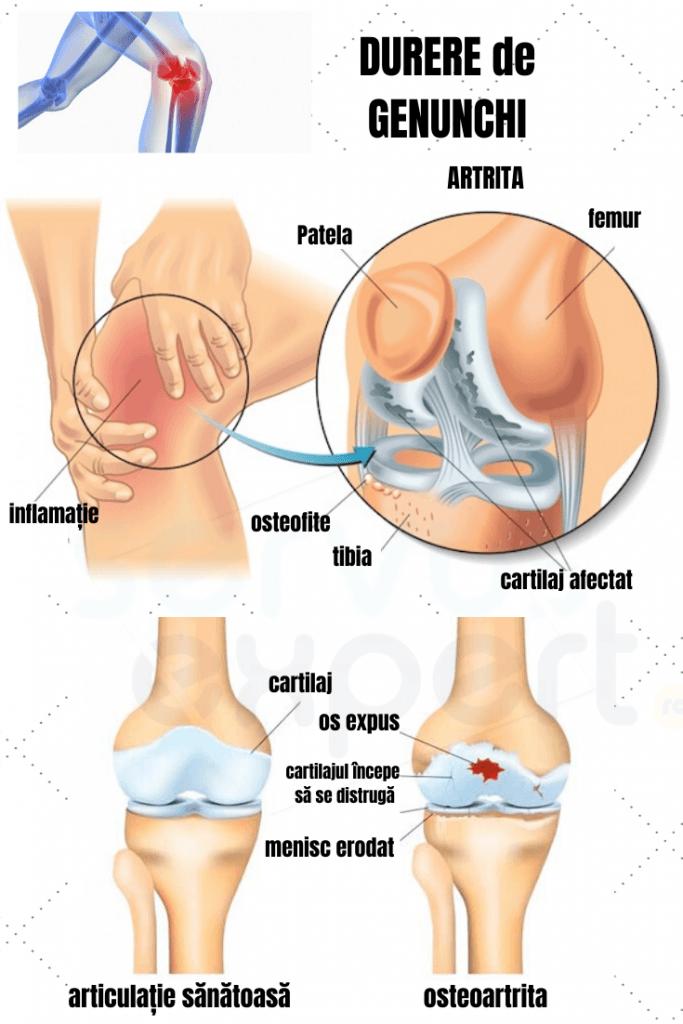 dureri la genunchi când mersul cauzează