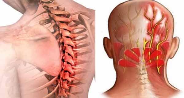 traumatism metacarpofangianal mușchii și articulațiile picioarelor doare