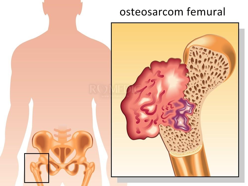 Inflamația articulației șoldului Inflamația sacului sinovial al articulației șoldului