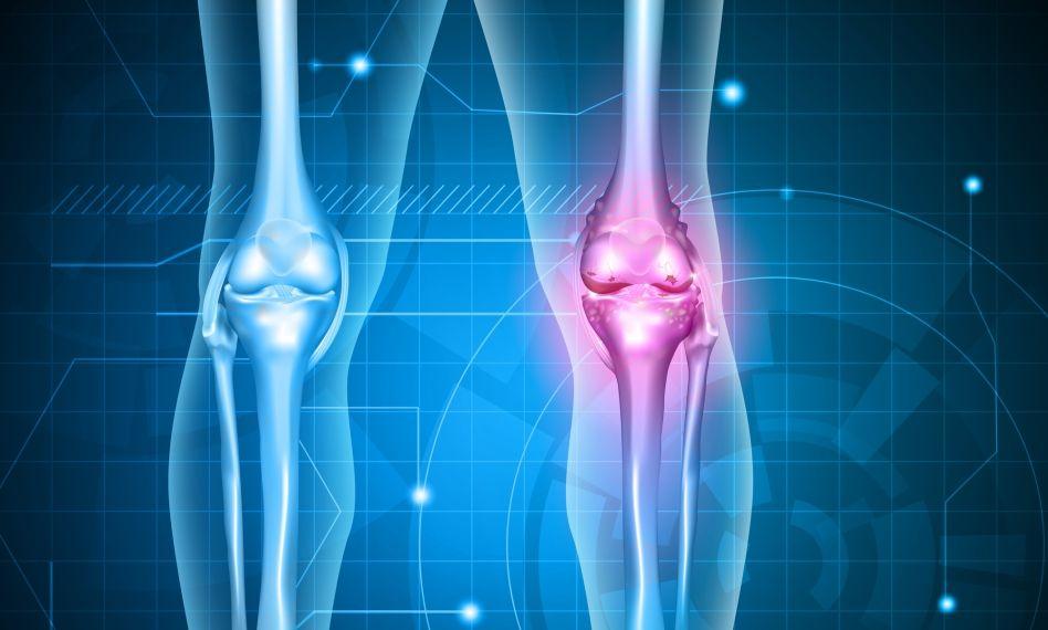 Pansamente cu sare pentru tratamentul artrozei genunchiului