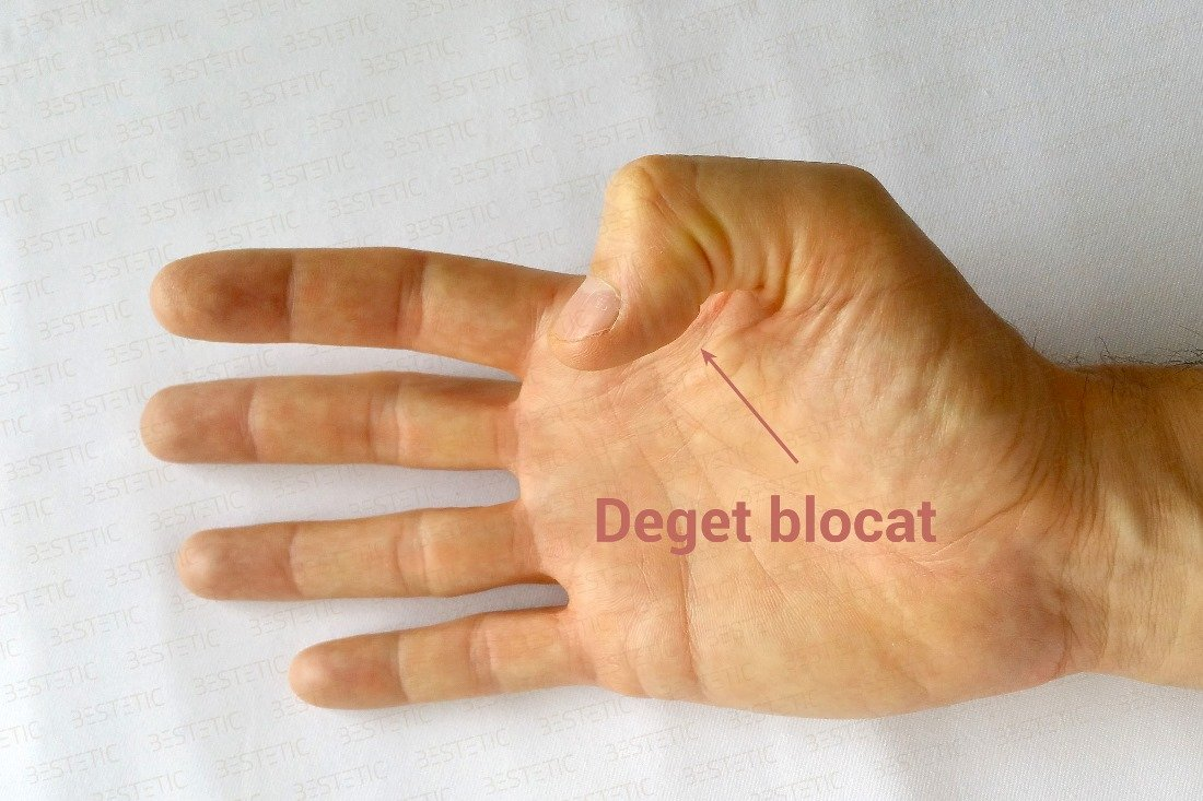inflamatie articulatii degete