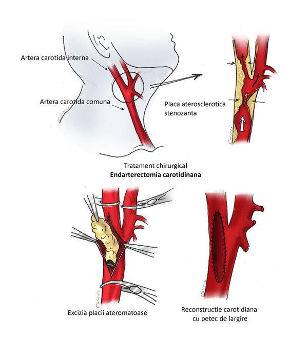 Boli comune – GLISSANDO