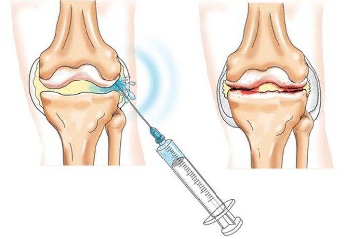Kenalog 40 recenzii pentru artroza genunchiului