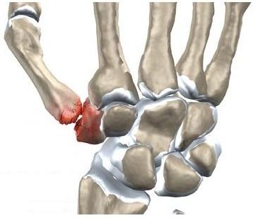 Articulația este umflată pe degetul mic și doare