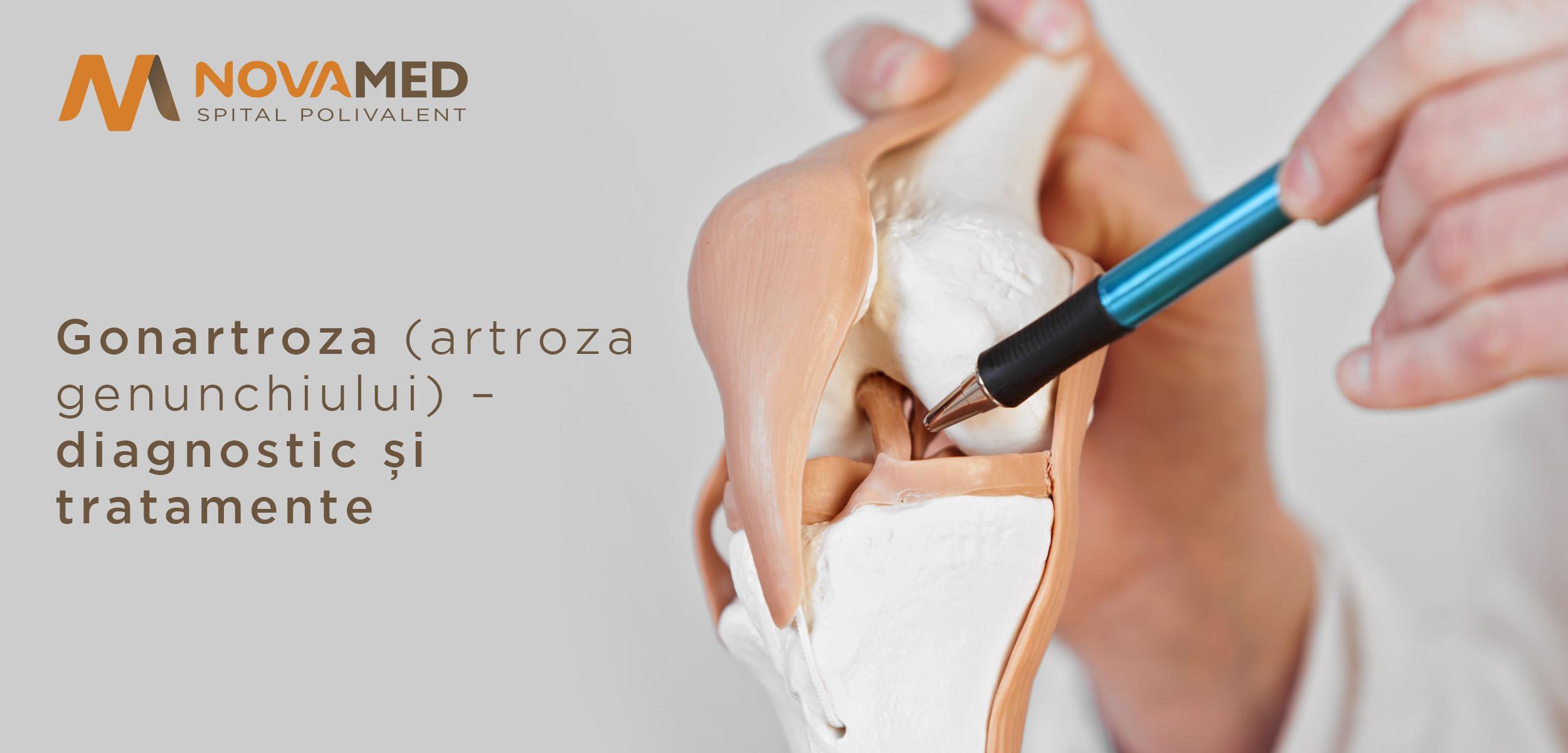medicamente eficiente pentru artroza genunchiului tratament comun cu lavoar
