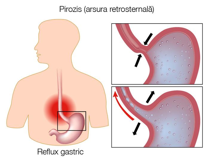 semne și tratamentul artrozei articulației șoldului recenzii de reparații ale articulațiilor și ligamentelor