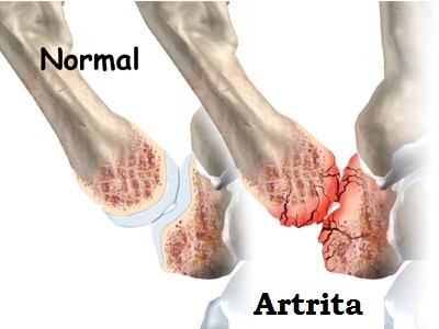 Articulația degetului mijlociu al piciorului drept doare