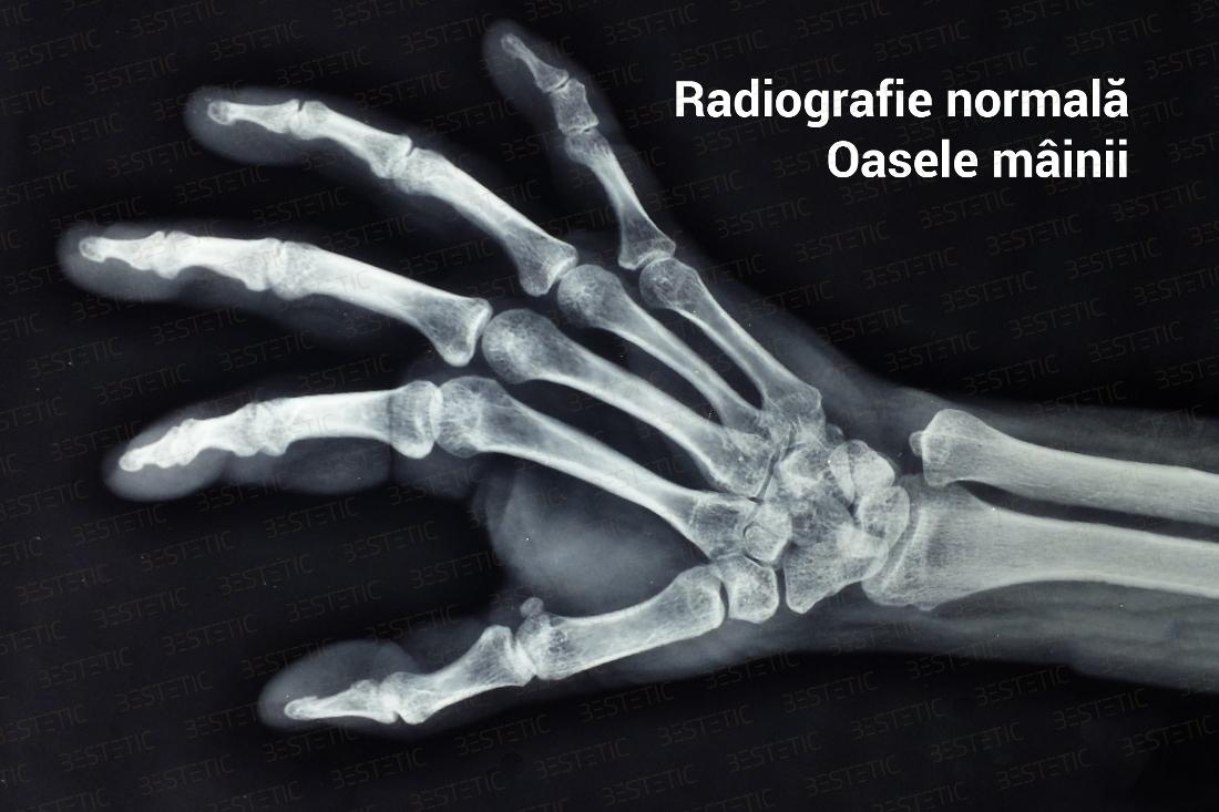 artroza în articulațiile încheieturii dureri la genunchi și vânătăi