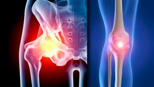Artroza: Cauze, Simptome, Tratament - Ortopedie ArcaLife