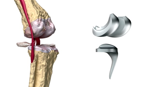 Balsam articular ligamentar, Ligamentele artificiale si articulare | insidefashion.ro