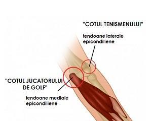 tendinita cot tratament