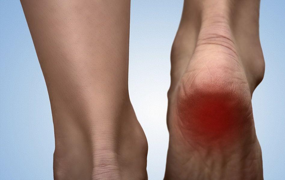 călcâie dureri articulare