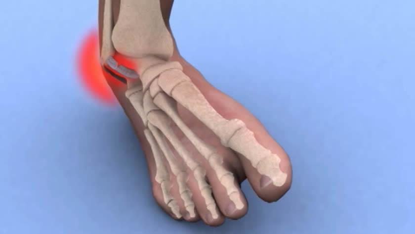 cum să tratezi entorsa piciorului