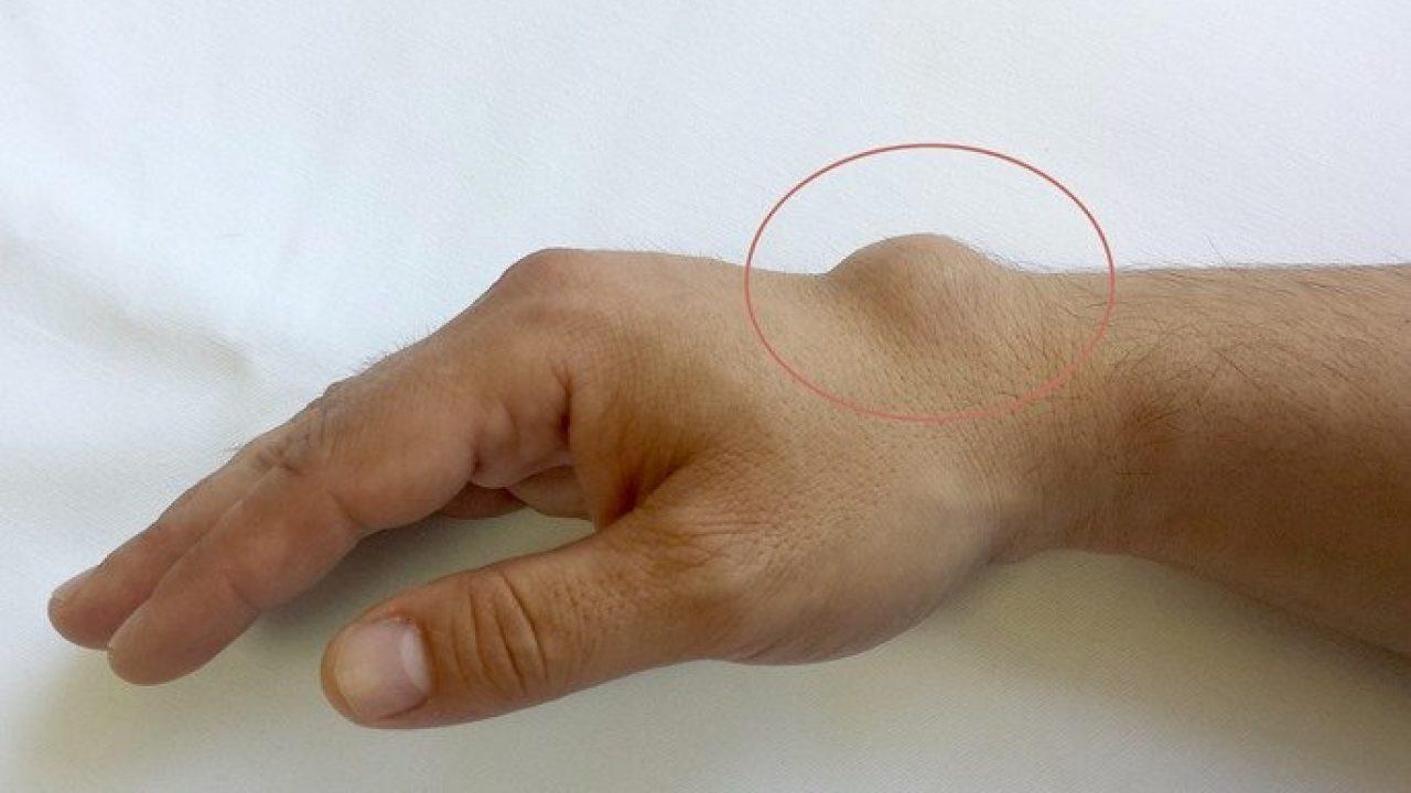 durere la încheietura mâinii de la degetul mic