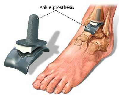 durerea și umflarea tratamentului articulației gleznei