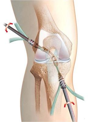 Recuperare artroscopie genunchi