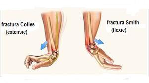 dacă articulația doare după o fractură