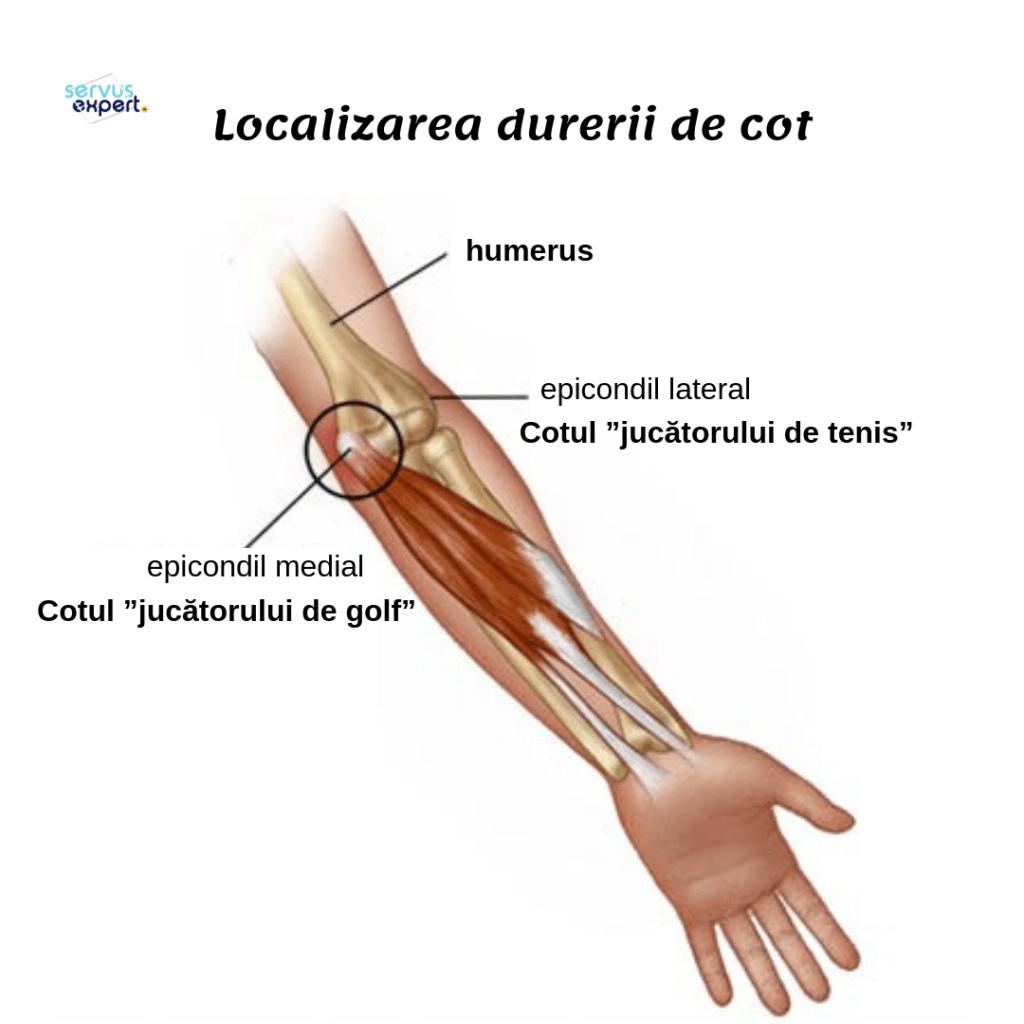 tipuri de artrită a articulației cotului