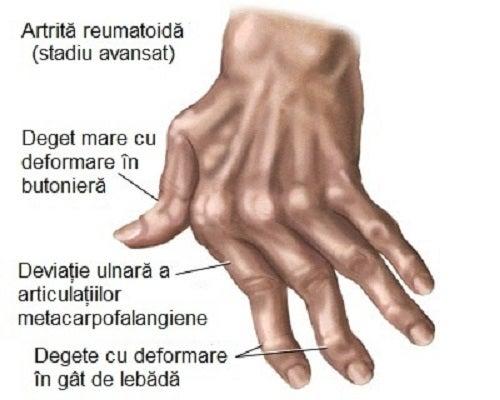 artrita articulațiilor mâinilor