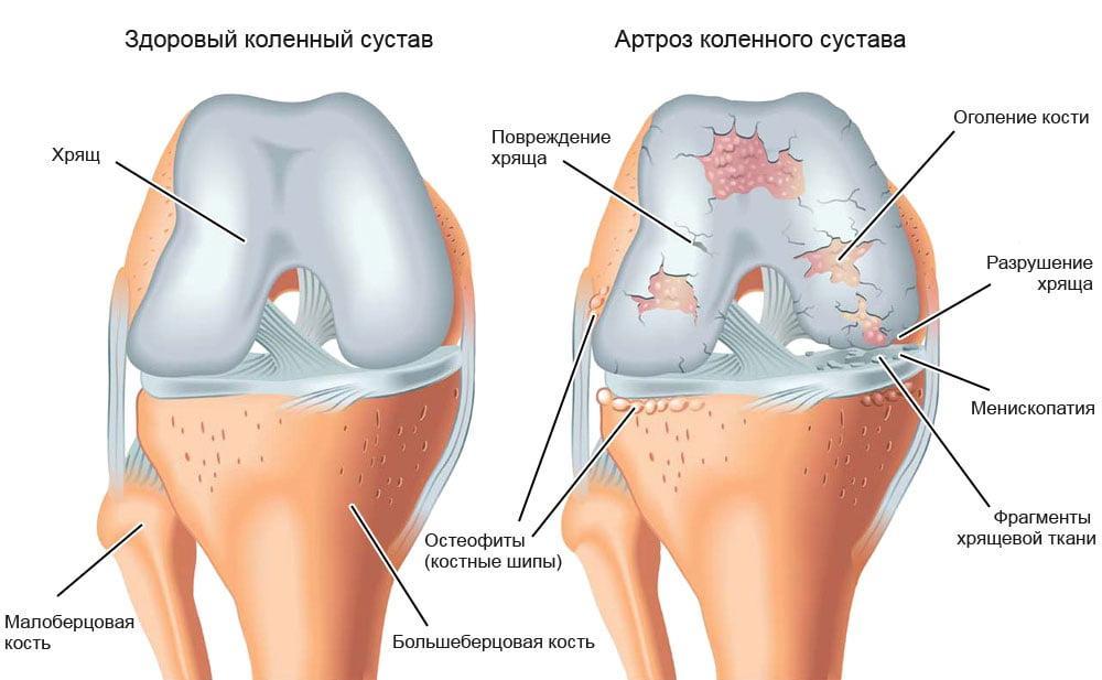 artroza degetului cum se tratează recenziile artroza deformantă a gleznei și a piciorului