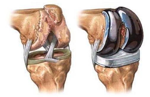 articulațiile degetelor mari și dureroase tratamentul durerii în articulațiile picioarelor