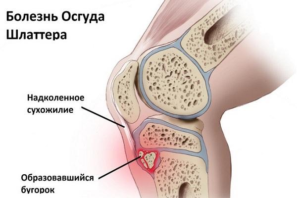 ozokerită în boala articulară